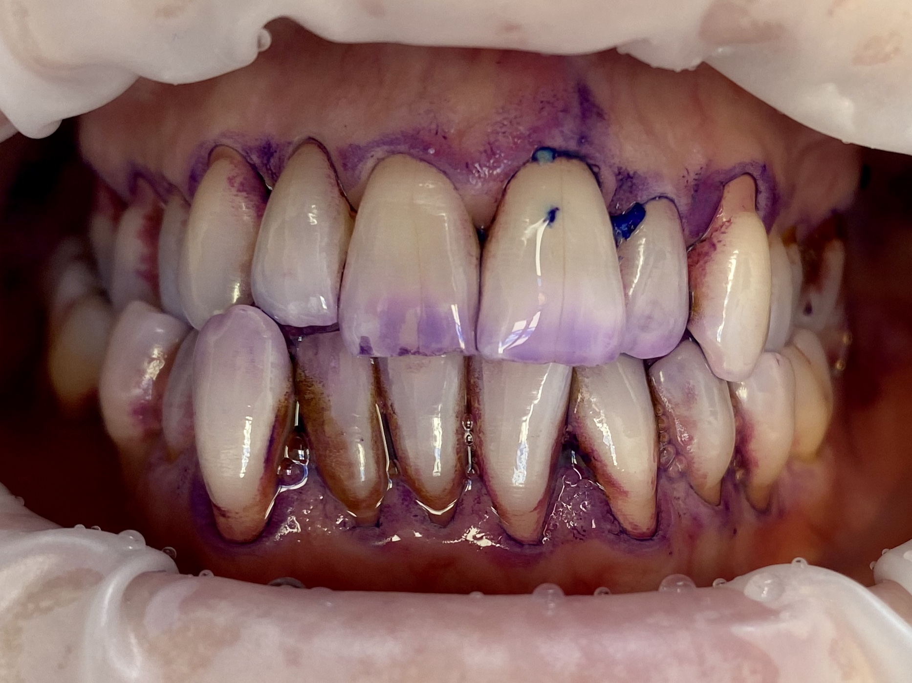 disclosing solution showing biofilm on stained teeth
